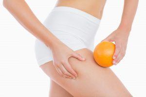 cellulite, peau d'orange biostimology blog